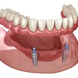 how much are dental implants secure lower denture
